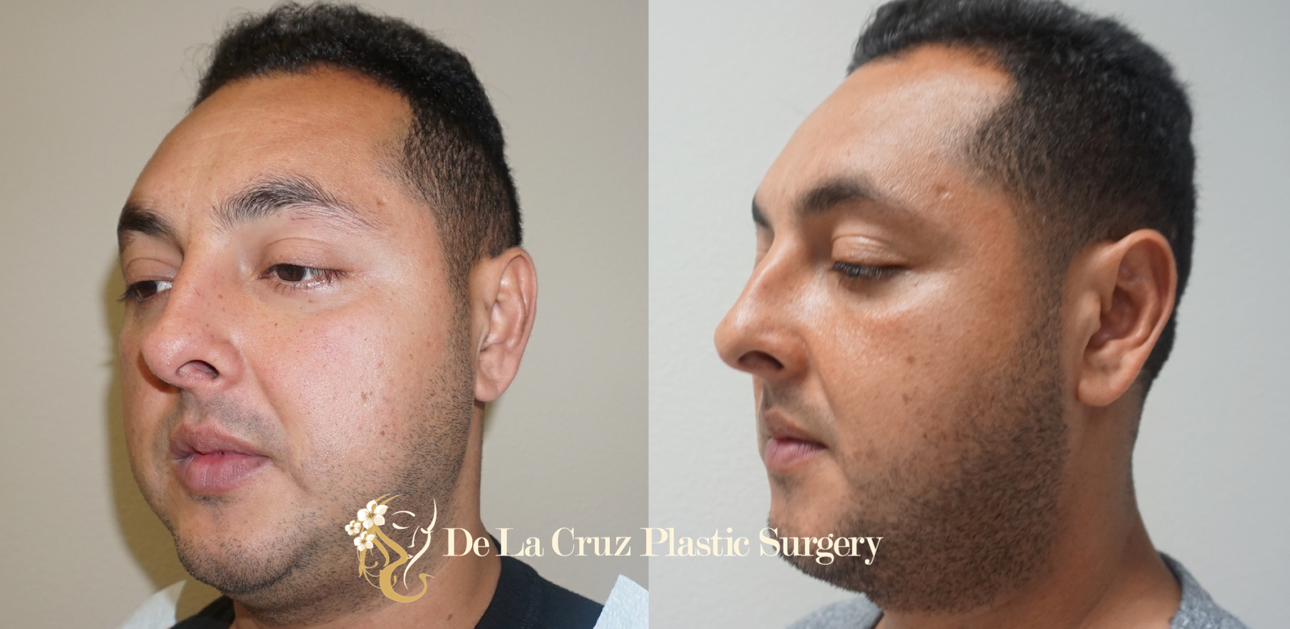 Buccal Fat Removal Before & After Photos (3 months after surgery) performed by Dr. Emmanuel De La Cruz.