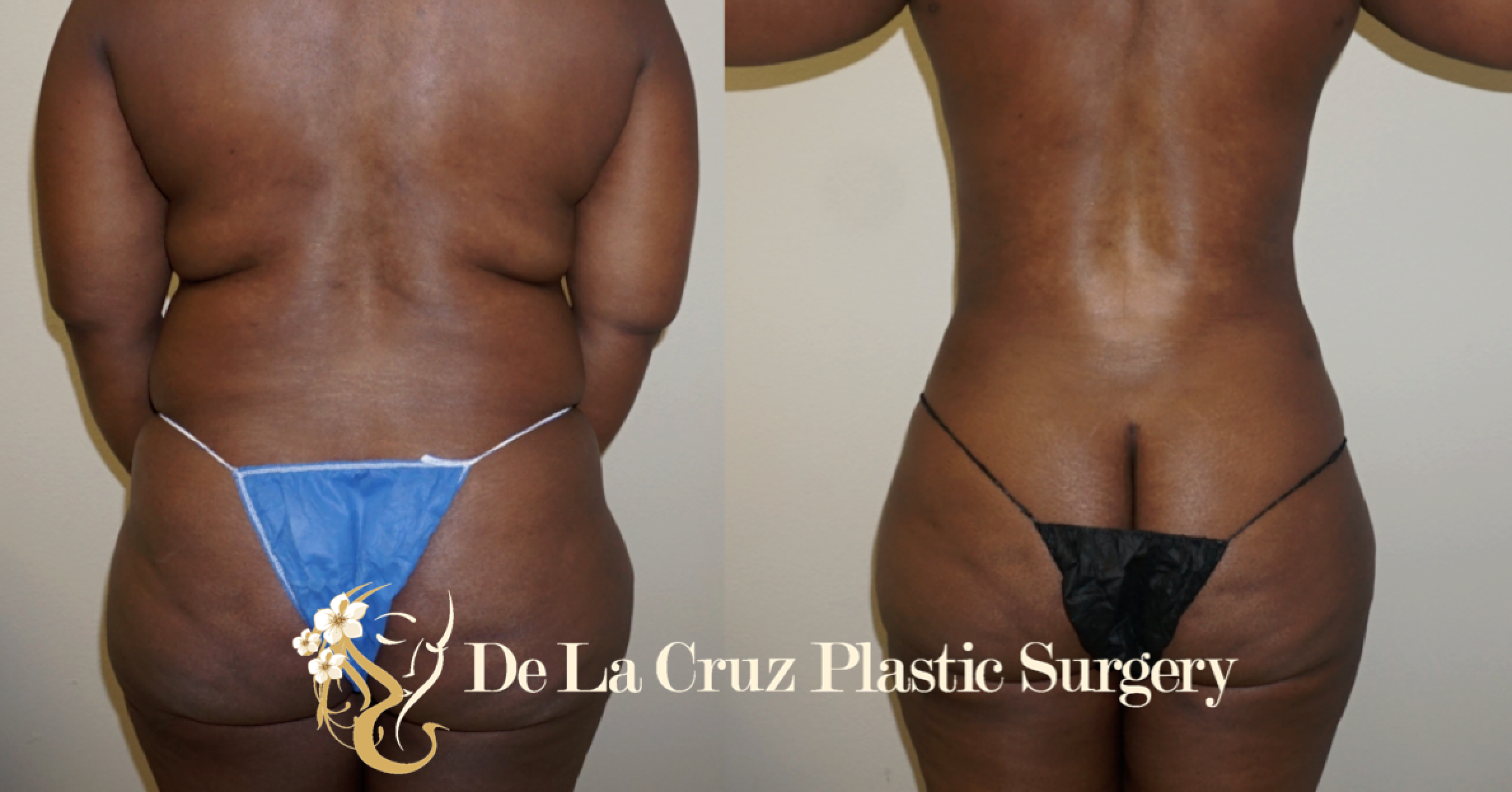 Before and After Photos of Large Volume Liposuction performed by Dr. Emmanuel De La Cruz.