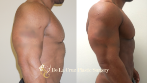 Before & After Photos (6 weeks after surgery) of  VASER Hi-Definition Liposuction  of the arms and abdomen to improve definition of the deltoids, triceps and biceps muscle performed by Emmanuel De La Cruz MD.