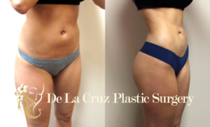 Before & After Photos (6 weeks after surgery) of VASER Hi-Definition  Liposuction of the Abdomen , back with fat transfer to the buttock performed by Emmanuel De La Cruz MD, PLLC>