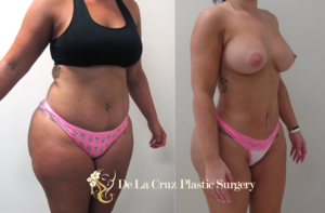 Before & After Photos (6 weeks after surgery) of VASER Hi-Definition Liposuction of the abdomen, arms, thighs with fat transfer to the buttocks (and removal of  Biopolymer /Hydrogel from the buttocks) performed by Dr. Emmanuel De La Cruz.