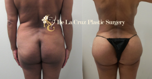 Before & After Photos of Brazilian Butt Lift with VASER liposuction of the back performed by Emmanuel De La Cruz MD, PLLC.