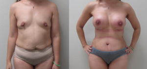 Before & After Photos of Abdominoplasty & Breast Augmentation (Mommy Make Over) performed by Emmanuel De La Cruz MD, PLLC