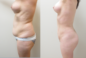 Before & After Photos of VASER  Liposuction  of the abdomen, flanks, back with fat transfer to the buttock performed by Houston Plastic Surgeon Emmanuel De La Cruz MD