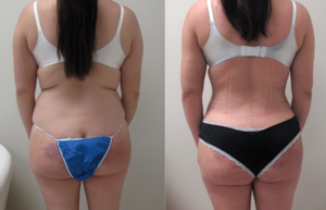 Before & After Photos of  VASER Hi-Definition Liposuction  of the abdomen, back with  Biopolymer removal  from the buttock and fat transfer to the buttock  performed by Dr. Emmanuel De La Cruz