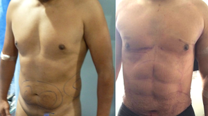 Before & AFter Photos of  4D VASER Hi-Definition  Liposuction of the abdomen/flanks/back and arms  (24 hours after surgery)