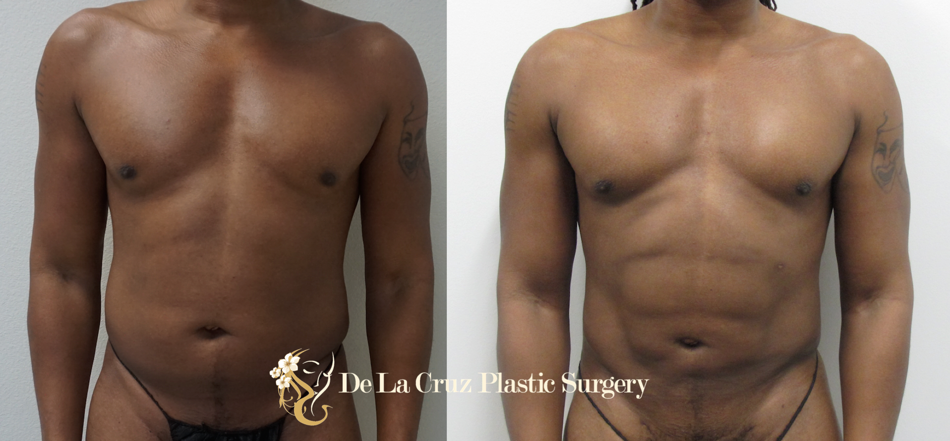 Before & After Photos of 4D VASER High-Definition  Liposuction  of the arms, abdomen/flanks/back (6 weeks after surgery) performed by Houston  Plastic Surgeon  Emmanuel De La Cruz MD, PLLC