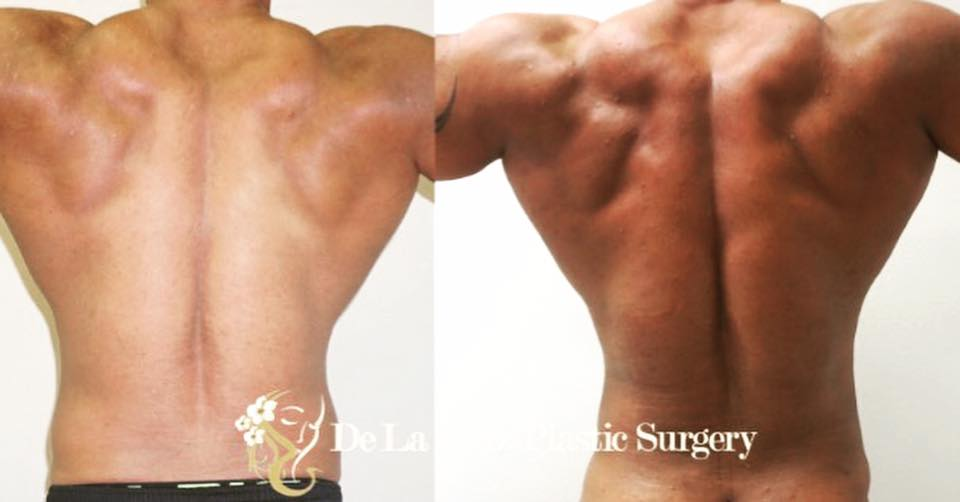 Before and After   Hi-Definition Liposuction   of the Back performed by Emmanuel De La Cruz MD, PLLC