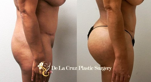 Before and After Brazilian Butt Lift performed by Dr. De La Cruz