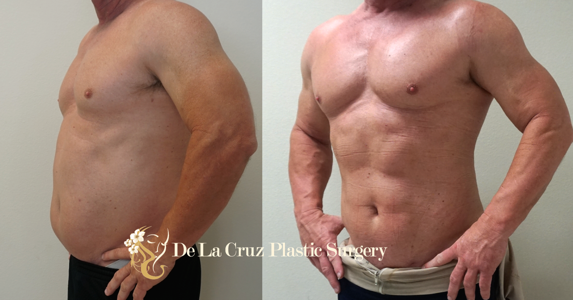 Before & After Liposuction (  4D VASER High-Definition Liposuction  ; 7 weeks after surgery) performed by Houston Plastic Surgeon Emmanuel De La Cruz MD