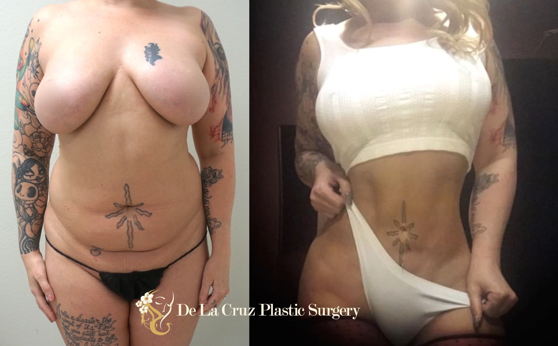 Before and After Photos of  4D VASER Hi-Definition Liposculpture  (3 months after surgery) performed by Emmanuel De La Cruz MD, Houston Plastic Surgeon