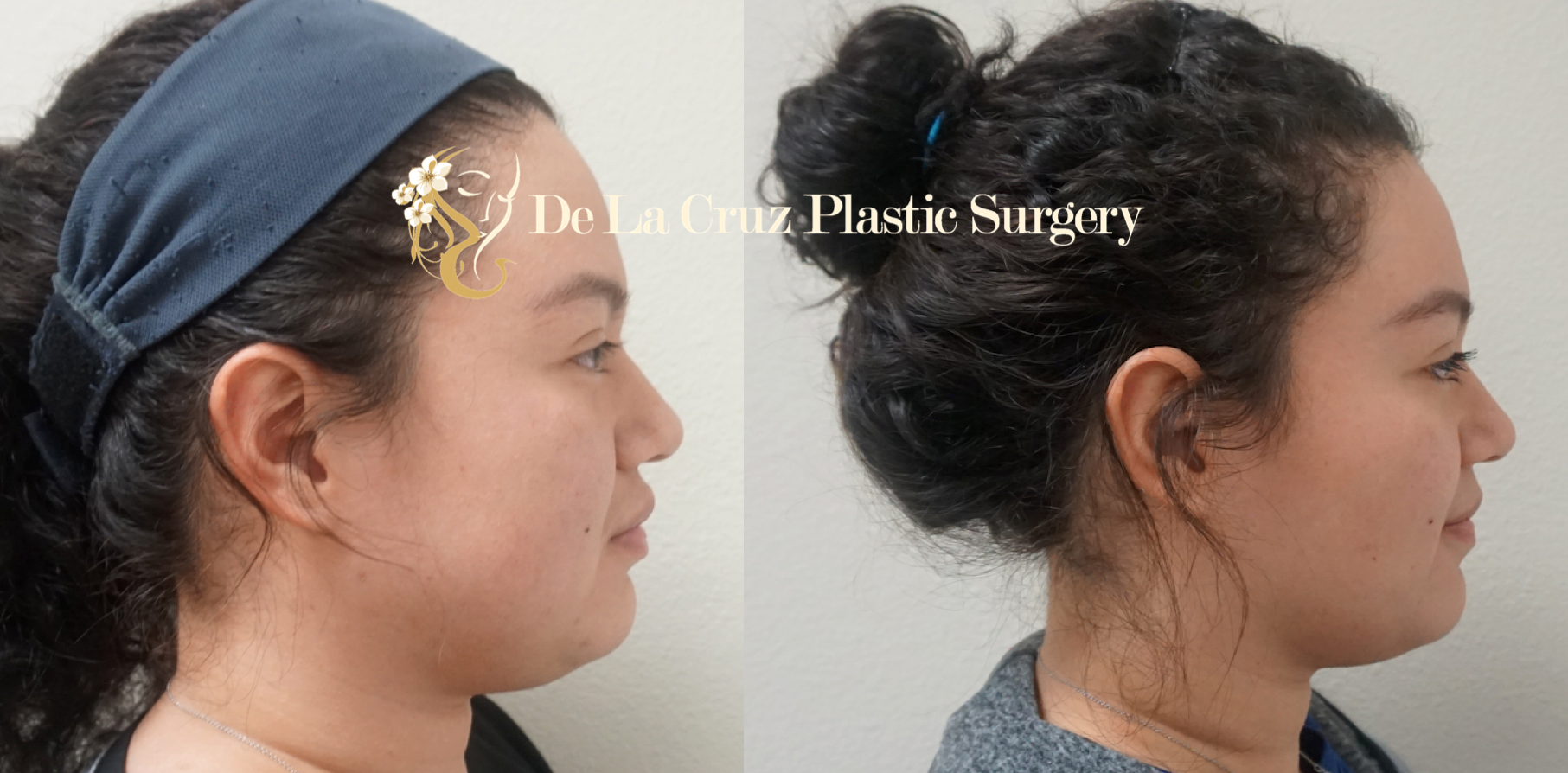 Before and After Photos of   Buccal Fat Removal   (Bichectomia) 8 weeks after surgery performed by Dr, Emmanuel De La Cruz in Houston, Texas.