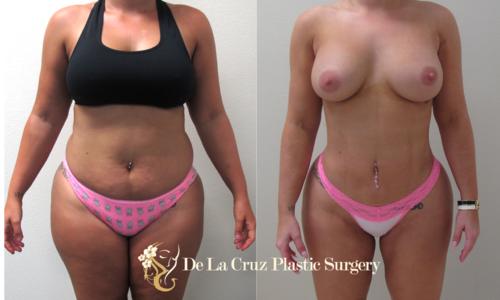 4D High-Definition VASER Liposuction performed by Dr. Emmanuel De La Cruz.