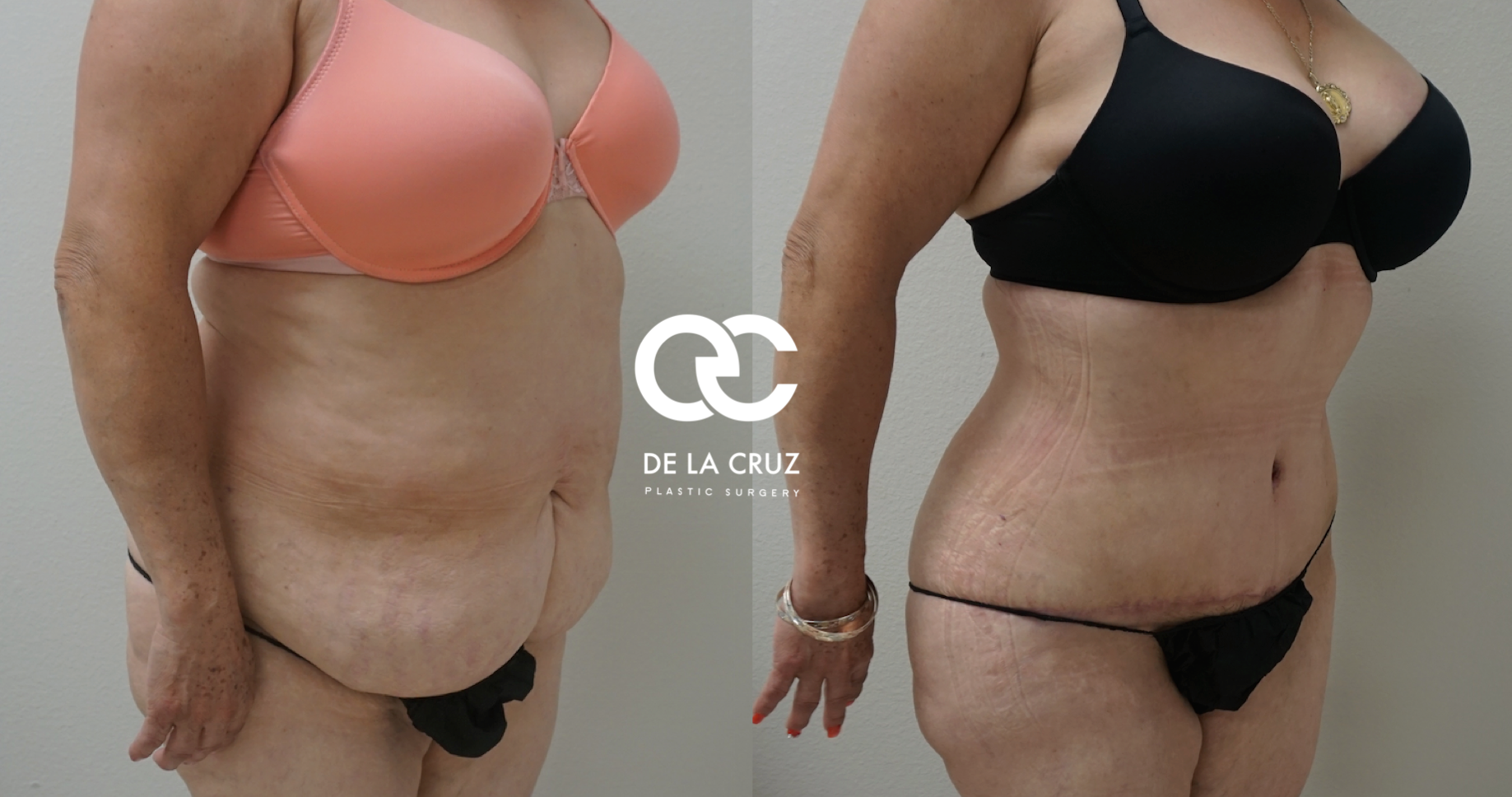 Before and After Photos of Abdominoplasty (Tummy Tuck) with VASER Liposuction of the back and flanks performed by Emmanuel De La Cruz MD
