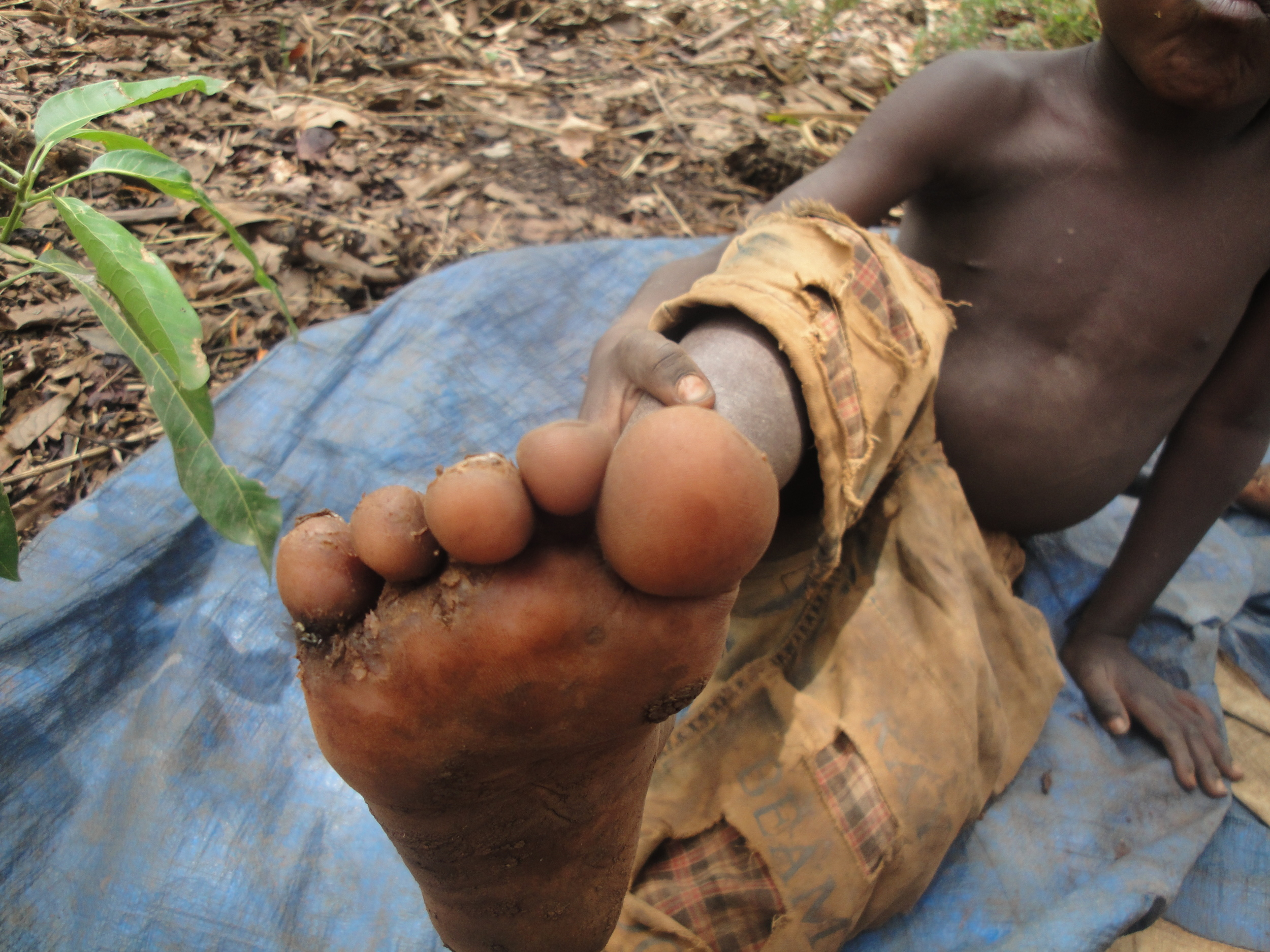 A child with jiggers (parasitic insects)