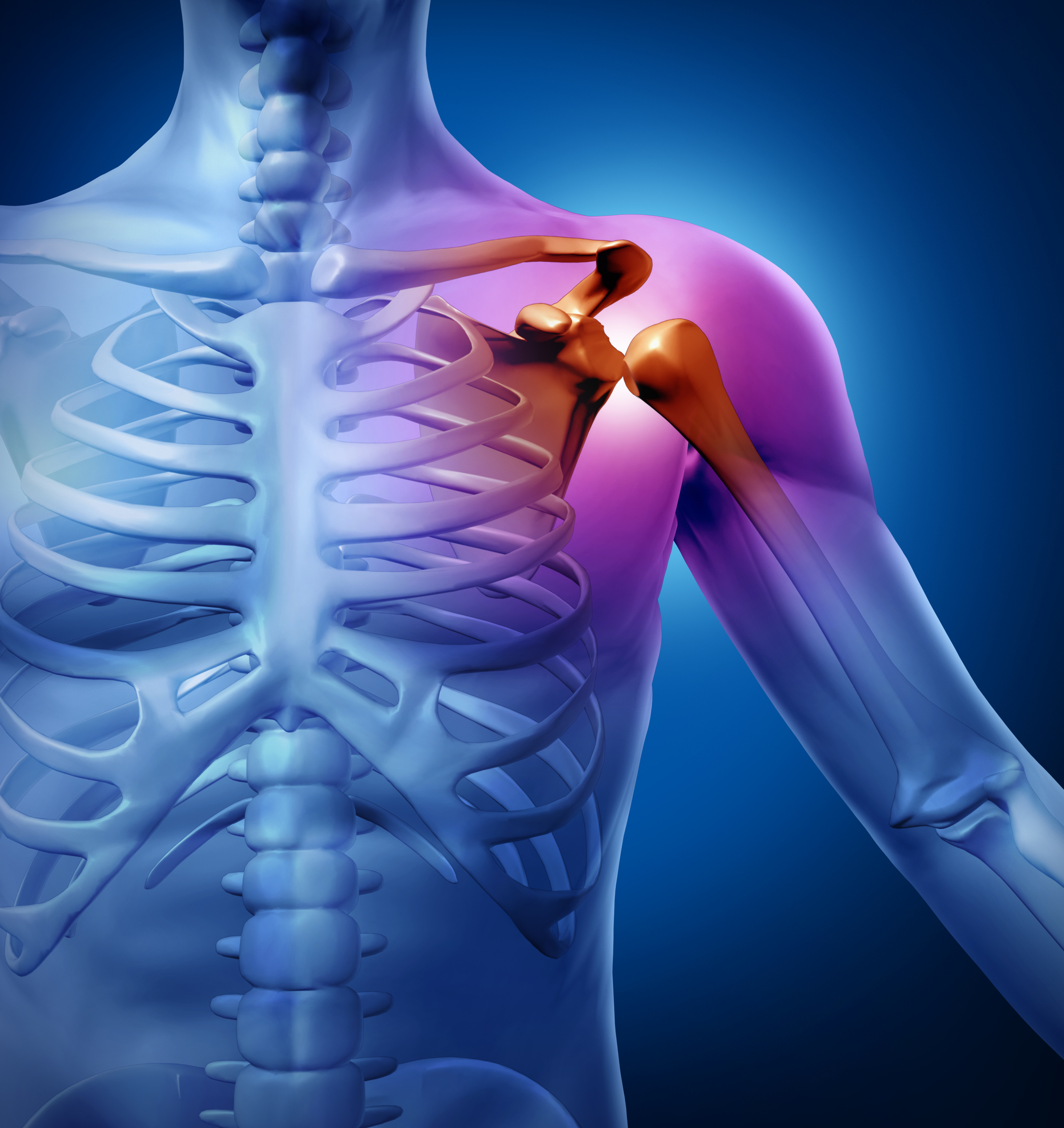 Shoulder disorders are common with overhead working and cause frequent sickness absence
