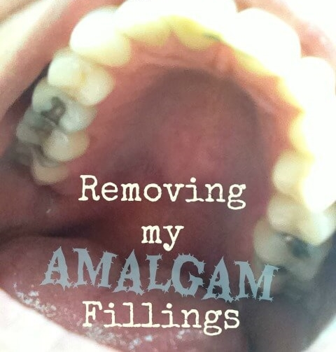 Removing-my-Amalgam-Fillings.jpg