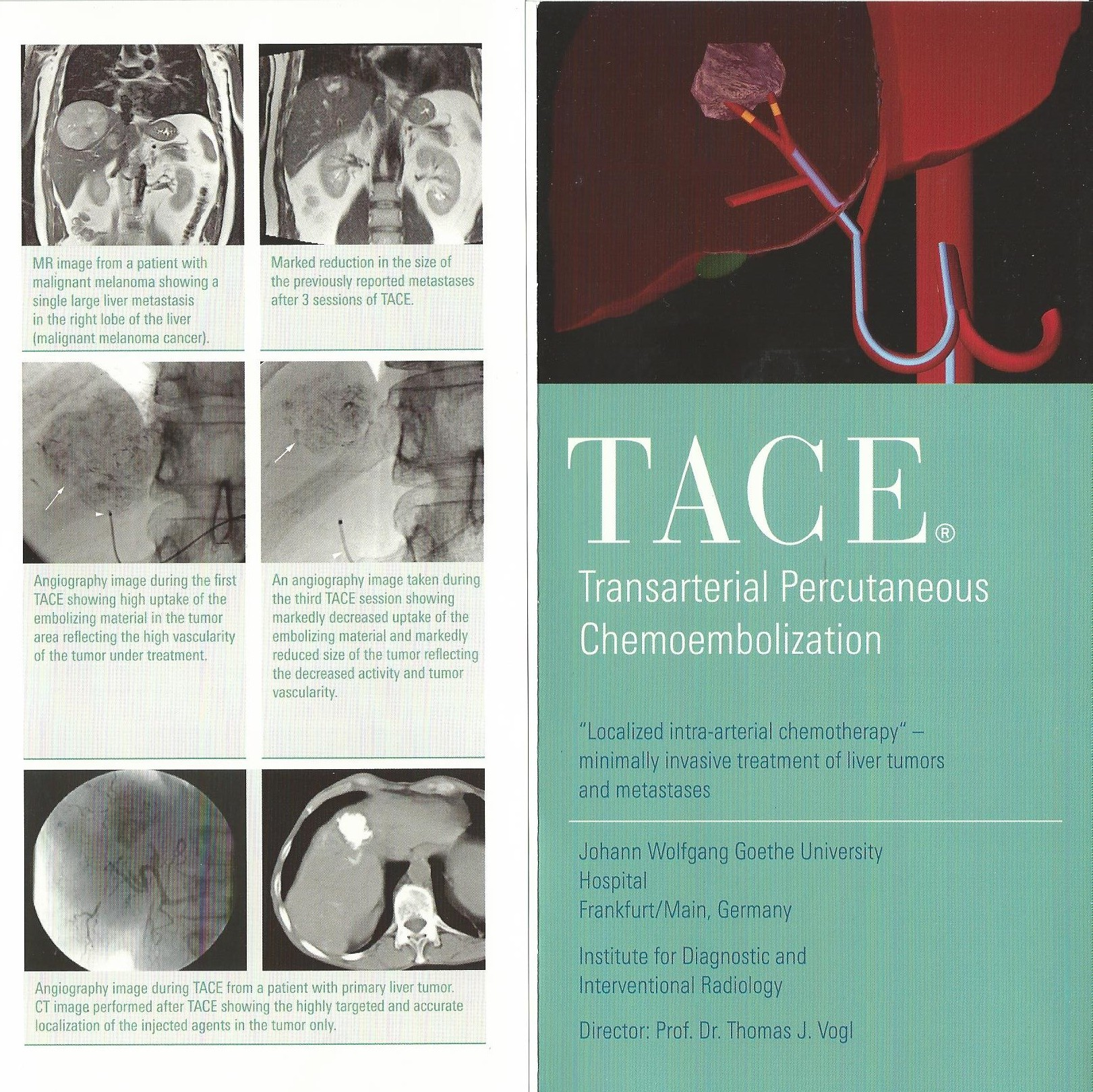MOre about TACE