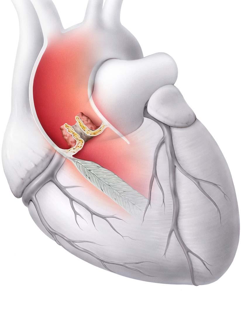 2-1-Aortenstenose-Krankheit.jpg