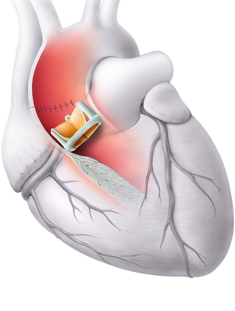 Chirurgischer Klappenersatz -