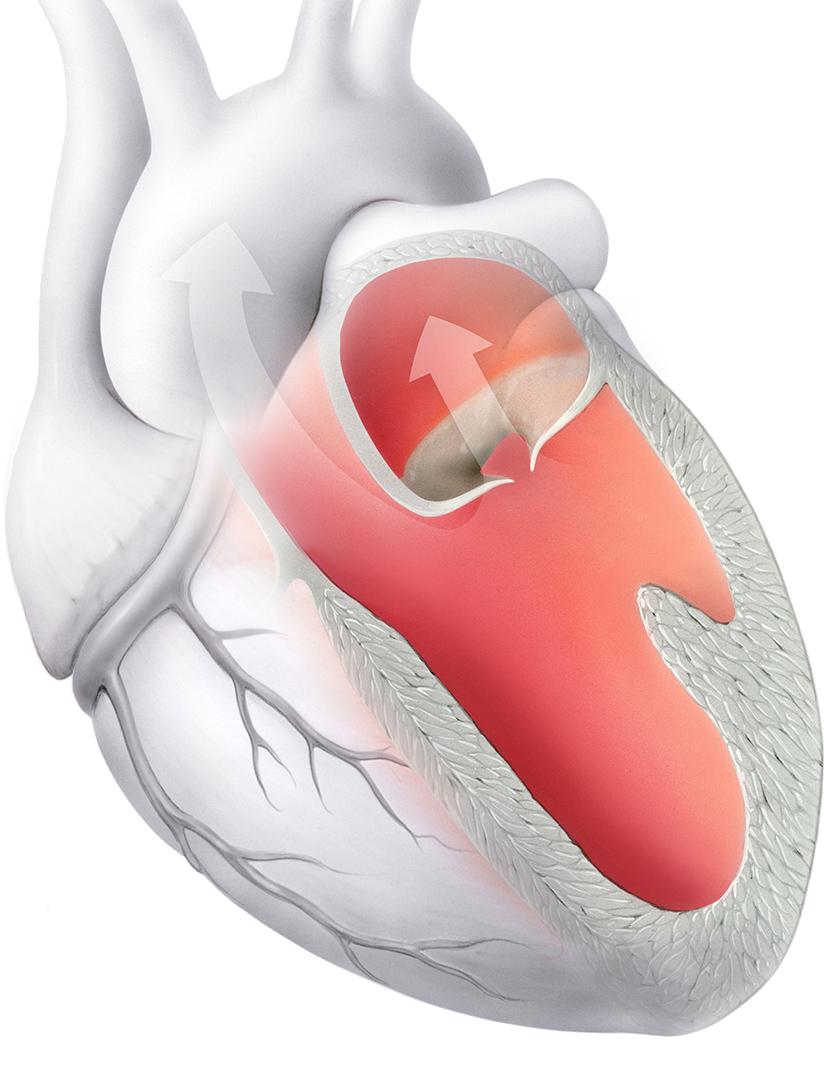 Herzmuskelschwäche (Herzinsuffizienz) -