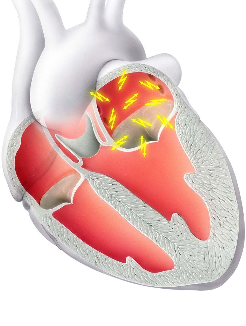 Herzrhythmusstörungen -