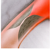 Koronare Herzerkrankung -