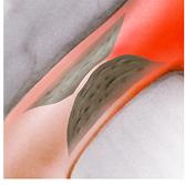 Koronare Herzerkrankung - Erkrankung der Herzkranzgefässe
