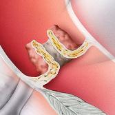 Klappenstenose (verengte Herzklappe) - Die Klappe öffnet sich nicht vollständig. Sie ist verengt. Vor der Klappe staut sich das Blut. Die Blutmenge, die durch den Körper gepumpt wird, reduziert sich. Das Herz muss mehr Pumpleistung aufbringen.