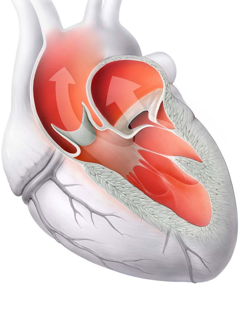 Pumpfunktion gesunder Herzklappen (Aorten- und Mitralklappe).
