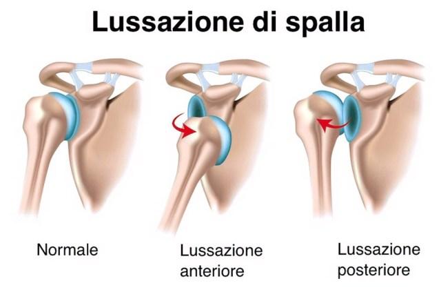 medicina-online-osso-spalla-lussazione-della-spalla-ecografia-ultrasuoni-risonanza-magnetica-raggi-rx-radiografia-immagine-anteriore-posteriore-differenze-articolazione-braccio.jpg