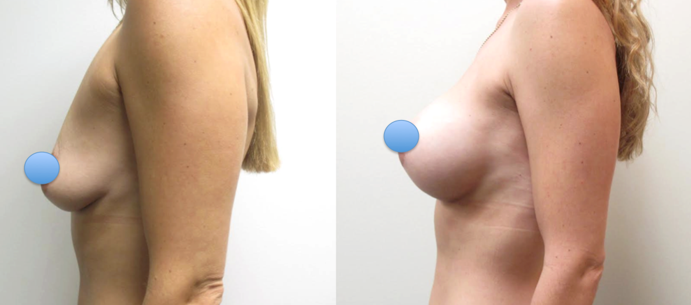 Before & After Photos of Breast Augmentation using the Dual-Plane Technique performed by Dr. Emmanuel De La Cruz.