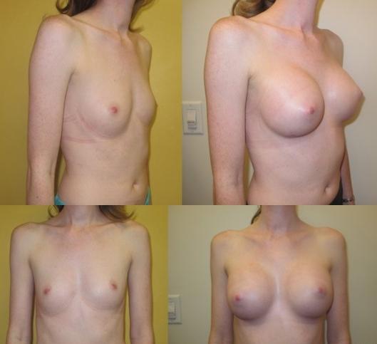 Breast augmentation with silicone implants performed by Dr. De La Cruz.