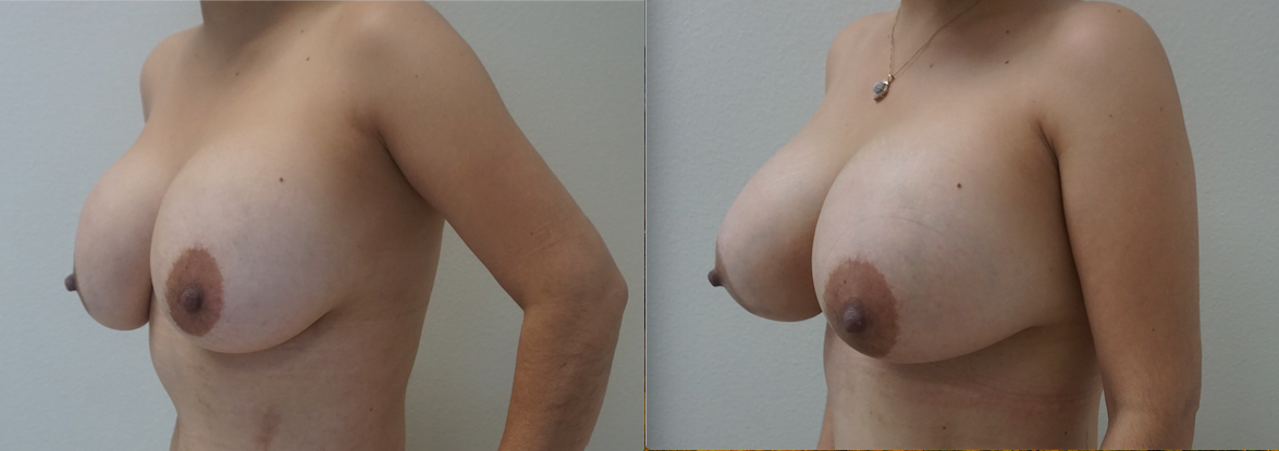 Breast implant replacement (from saline to silicone implants) performed by Dr. De La Cruz.