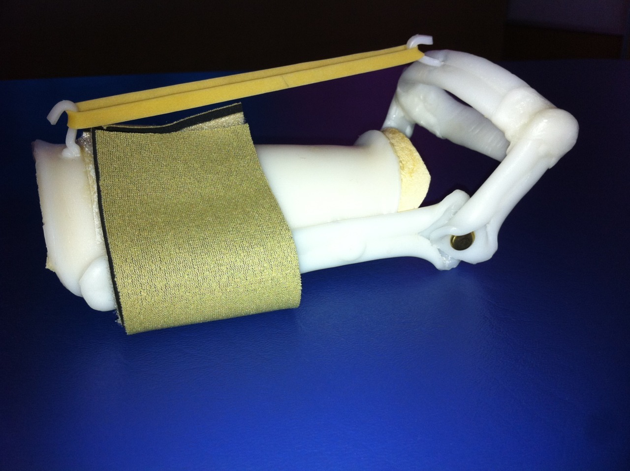 I had a client with juvenile rheumatoid arthritis who was limited in wrist extension. Her doctor had requested I make a splint to increase range of motion in wrist extension. I could have made a static splint and remolded it as she progressed, but it didn't seem like the best option. I did a little research online, and found a dynamic design. I've never made a dynamic splint before, but I was willing to try it.   On this splint, there is a piece that fits on the dorsal side of the forearm and the fingers slide into the oval shape and rest at the MCP joints. There are two small hooks. One at the far side of the forearm and one at the fingers. A rubber band is secured around the hooks and provides a consistent stretch into wrist extension. The hinge at the wrist allows her to flex her wrist and use her hand functionally. As she progressed, I used tighter rubber bands and eventually twisted them around several times to provide a greater stretch. She went from neutral wrist extension to 70 degrees.