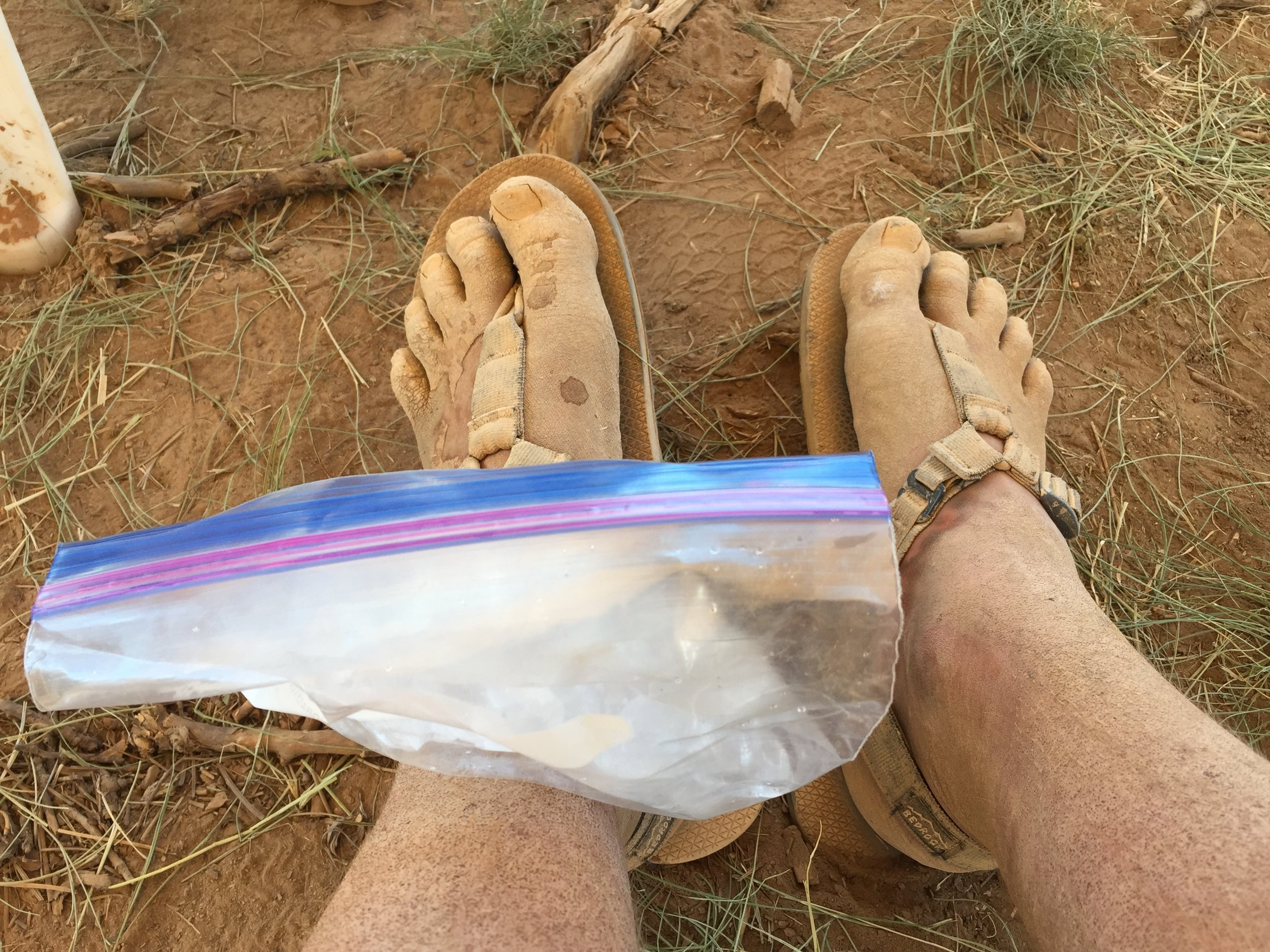 Immediately after finishing the Bryce Canyon 100 I began to ice my painful shin/upper foot, because I wanted to be able to walk again! My foot was swollen to double its normal size and it took me about three weeks to get it back to normal.