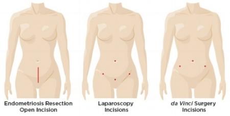 da-vinci_endometriosis_resection_incision_comparison.jpg