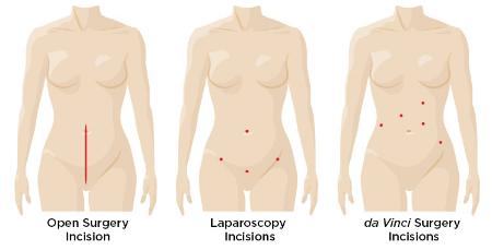 da-vinci_hysterectomy_benign_incision_comparison.png