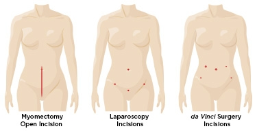 da-vinci_myomectomy_fibroid_removal_incision_comparison.jpg