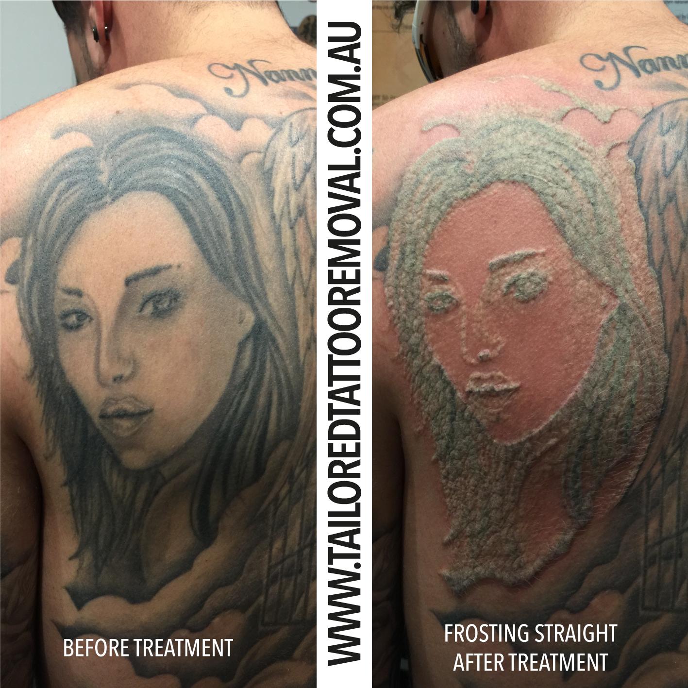 tattoo_removal_fotona-frosting.jpg