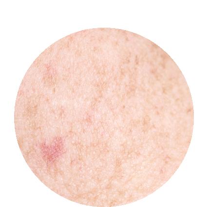 lightens dark spots -