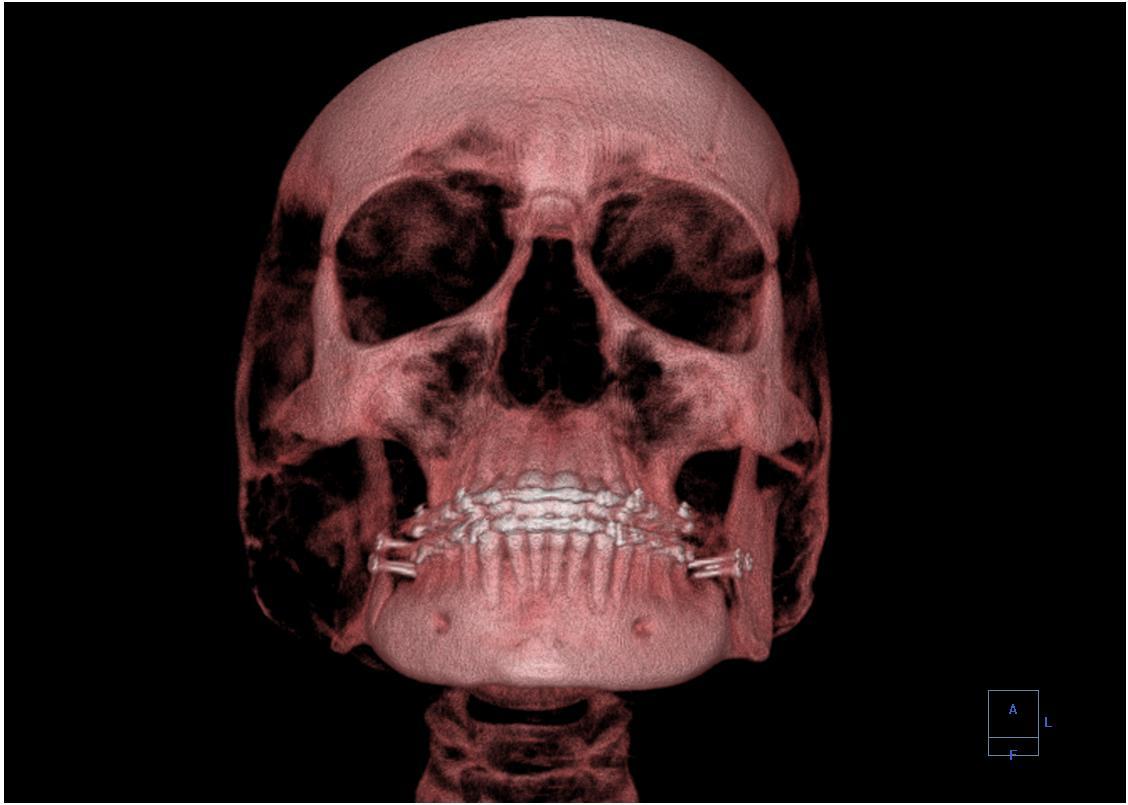 Computer_tomography_Skull.jpg