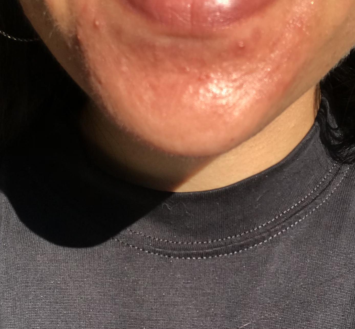 Perioral dermatitis apple cider vinegar