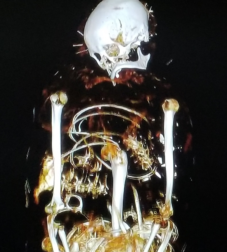 x-ray of mummified remains from Palace of Legion of Honor exhibit
