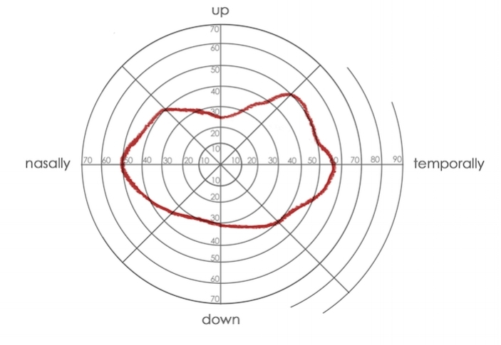 An 'isopter' - a representation of a person's field of view using a graph