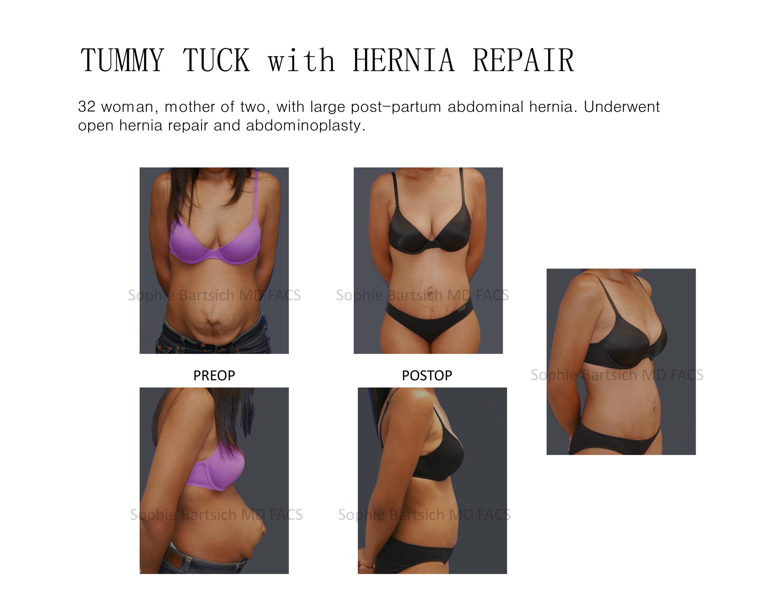 hernia tummy.jpg
