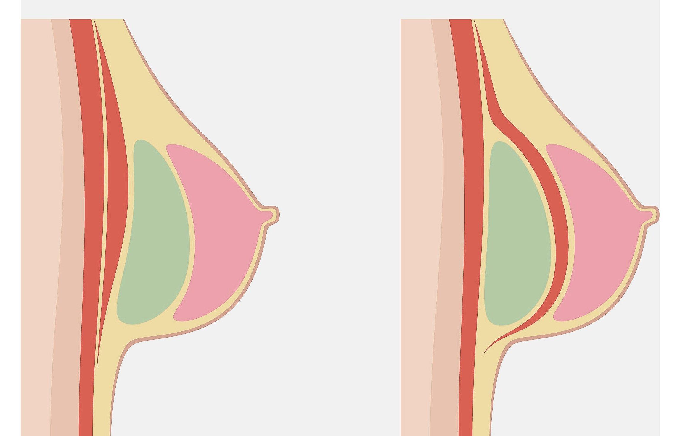 breast implant contamination