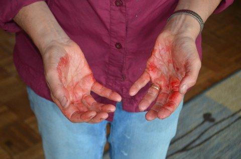 bloody hands.JPG