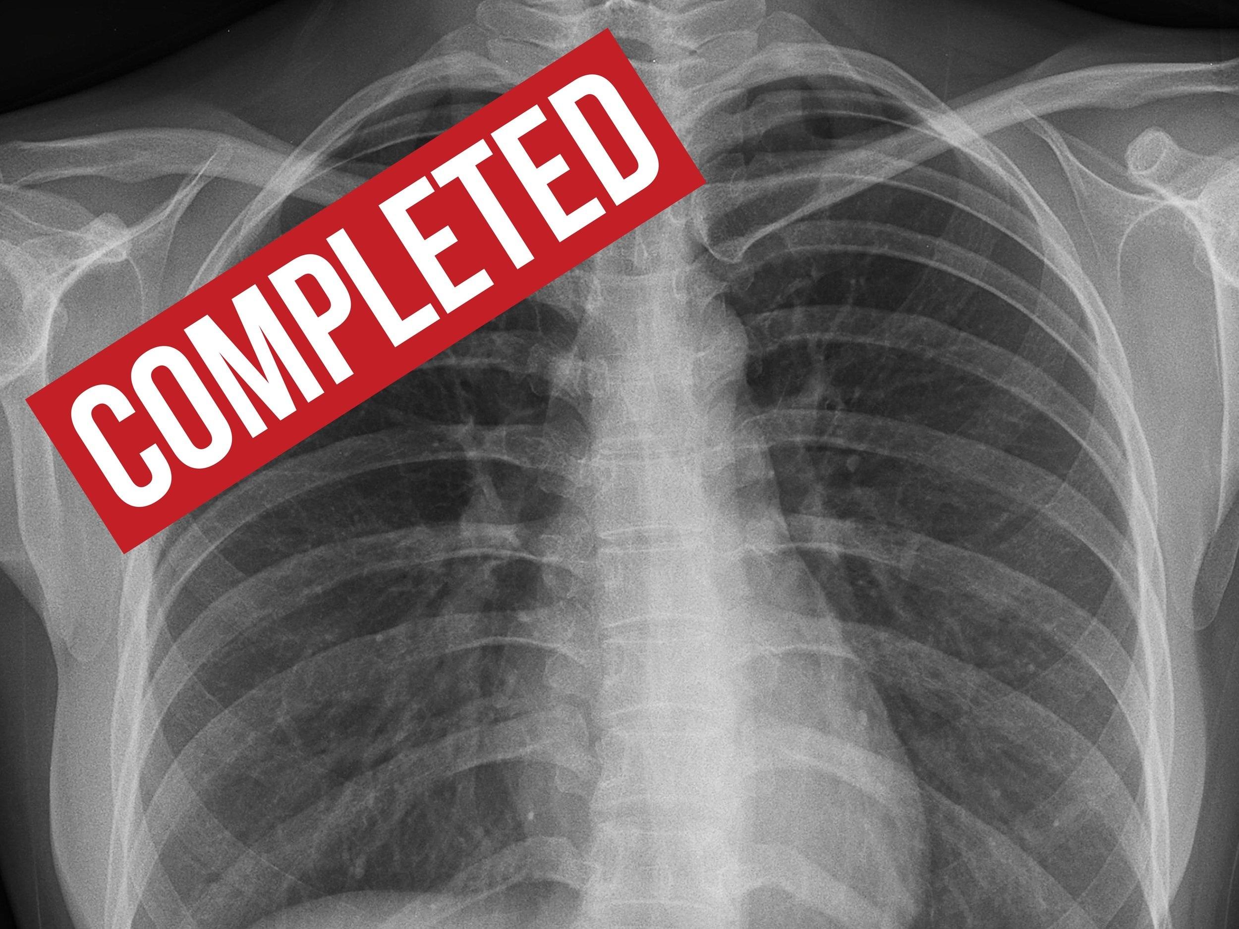 impact_latent_tuberculosis_study