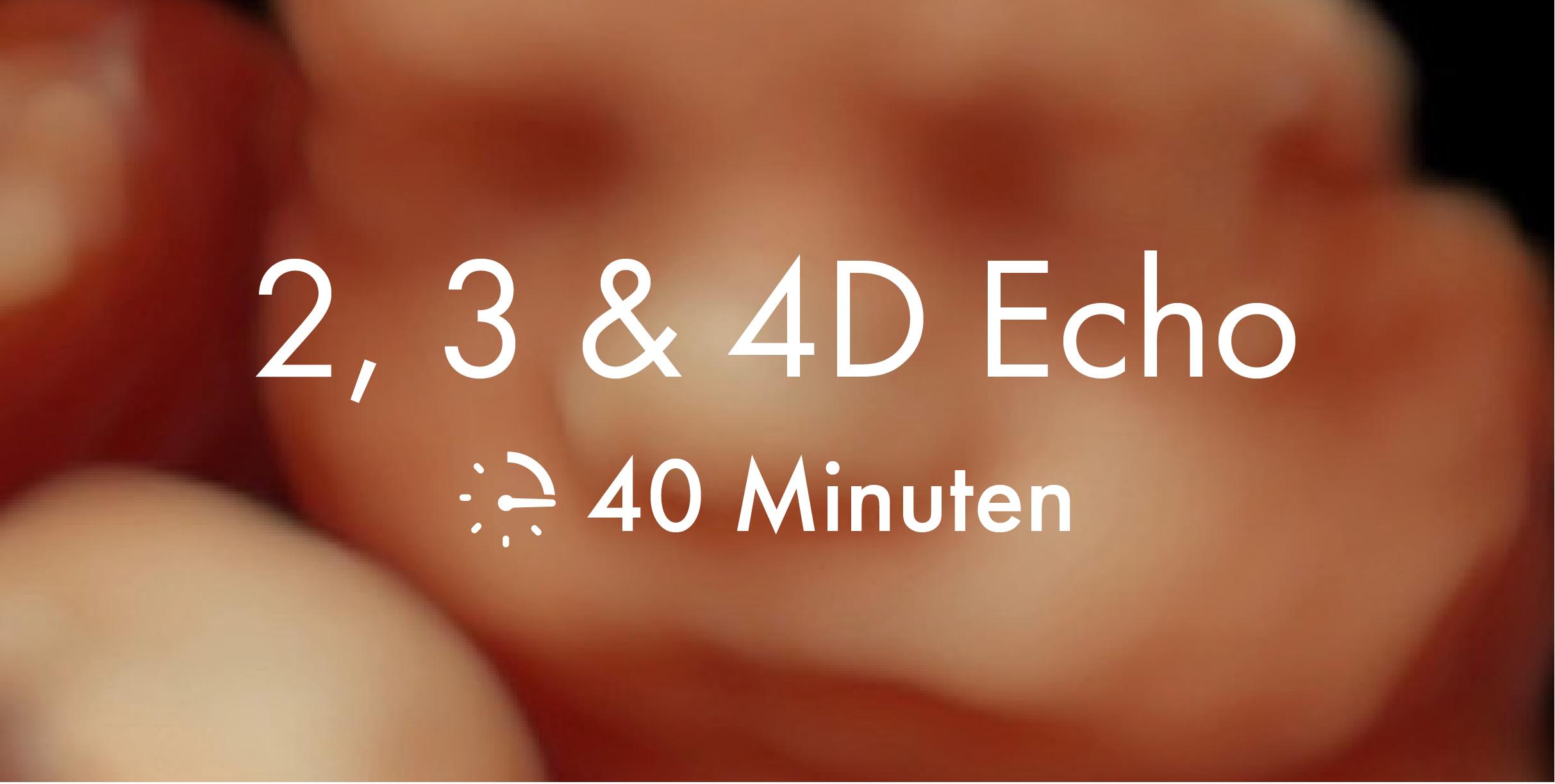 2, 3 en 4D echo, 40 minuten